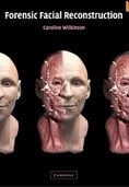 Forensic facial reconstruction (Wilkinson, C.)